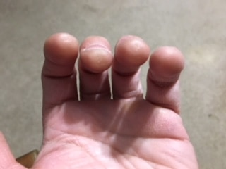 Will My Fingers Get Ugly if I Learn the Guitar?